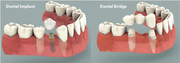 Dental Implants vs. Dental Bridges Westcoast