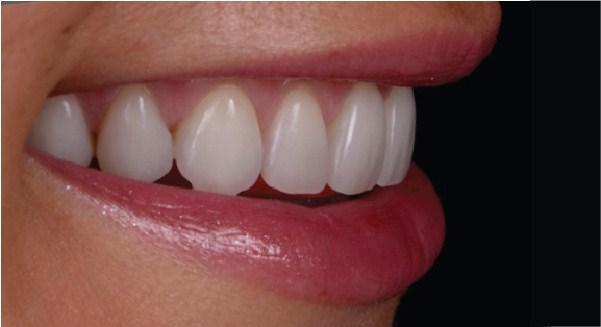 Westcoast Smile Dental
