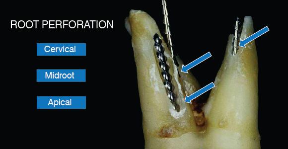 根管治療時に根管壁が薄くなってしまった、または最悪の場合根管の壁を貫いてしまった